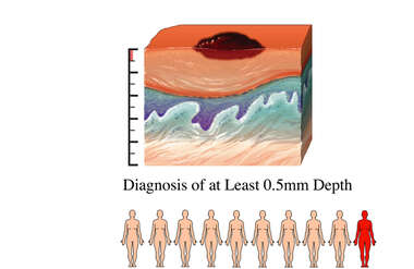 Melanoma - Diagnosis of at Least 0.5mm Depth