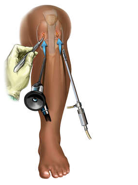 Knee Portals for Arthroscopy