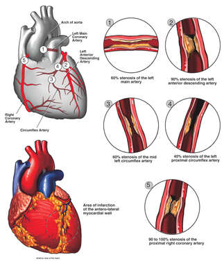 Atherosclerotic Coronary Artery Disease of the Heart