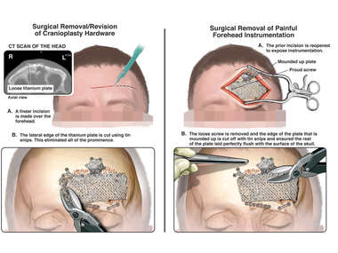 Additional Surgical Repairs: Revision of Cranioplasty Hardware