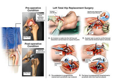 Left Hip Injury and Surgery