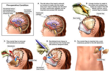 Decompressive Craniectomy and Ventriculostomy