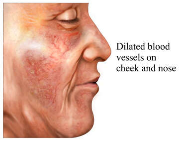 Dilated Blood Vessels on the Face