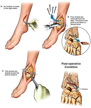 Post-traumatic Arthritis of the Ankle with Proposed Future Fusion Procedure
