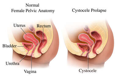 Urinary Bladder Prolapse with Cystocele