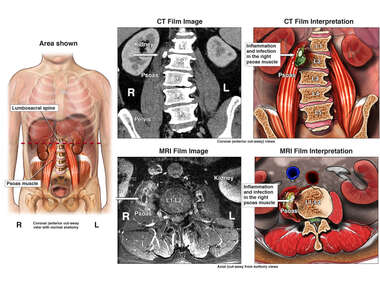 Muscular Inflammation and Infection