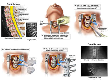 Two Level Cervical Fusion
