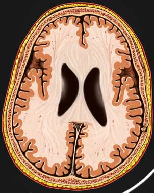 Brain with Ventricles (MRI), Cut-away View