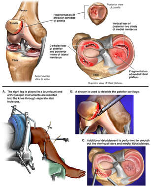 Arthroscopic Knee Repair
