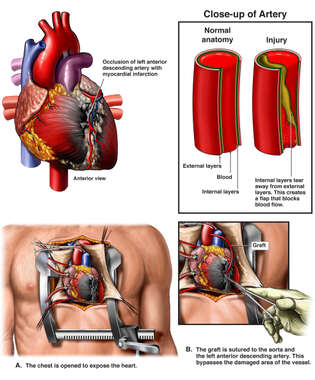 Crush Injury of Heart with Arterial Occlusion and Resulting Myocardial Infarction