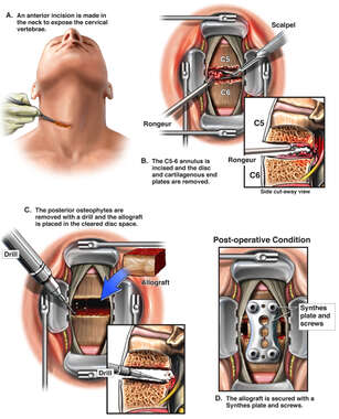 Cervical Surgical Discectomy and Fusion