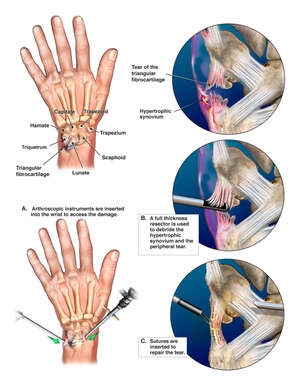 Left Wrist Injury with Arthroscopic Repair