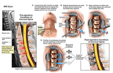 Cervical Spine Injuries with Multilevel Radical Discectomy and ProDisc-C Total Disc Replacement Surgery
