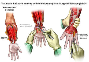 Traumatic Left Arm Injuries with Initial Attempts at Surgical Salvage