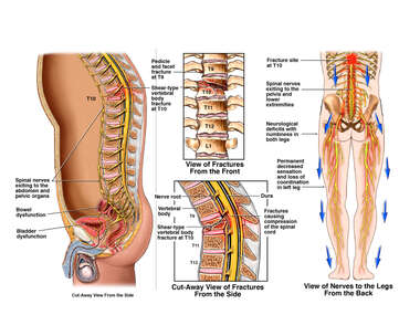 T10 Vertebral Body Fracture with Weakness of the Legs