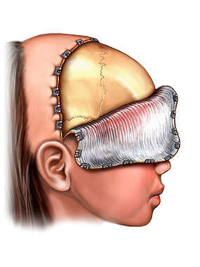 Craniotomy Exposure - Child