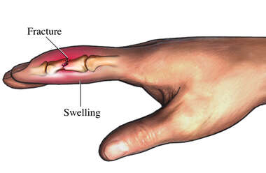Fractured Finger with Swelling