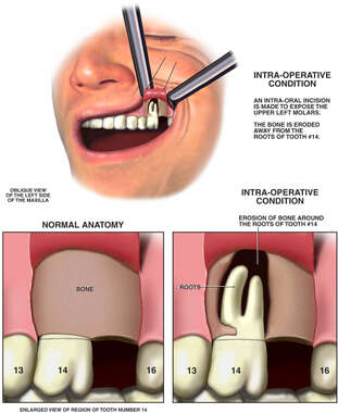 Surgical Investigation of Maxillary Bone Loss