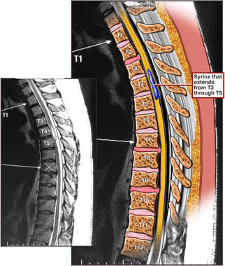Condition of Thoracic Spine