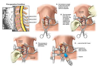 Cervical Disc Injuries with Triple Level Anterior Discectomy and Fusion