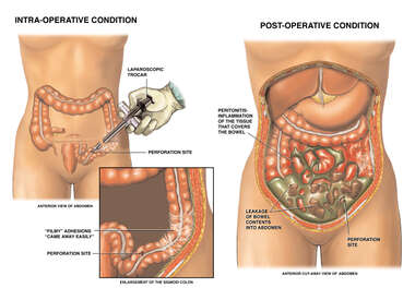 Laparoscopic Surgery with Bowel (Large Intestine) Perforation