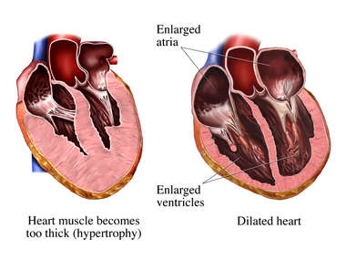 Dilated Heart Muscle Walls