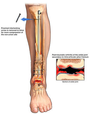 Post-traumatic Left Ankle Joint Arthritis