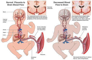 Decreased Blood Flow to the Uterus Due to Cord Compression