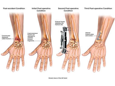 Progression of Left Wrist Injury