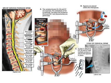 Cervical Spine Injuries with Double Level Surgical Discectomy and Fusion