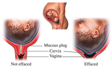 Changes in the Cervix During Pregnancy