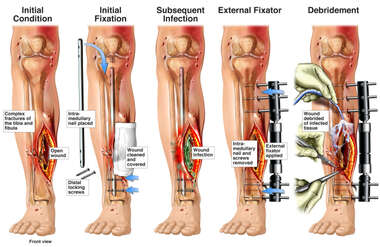 Tibial Fracture Fixation and Complications