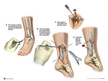Left Tibial Nonunion with Harvest and Placement of Bone Grafts