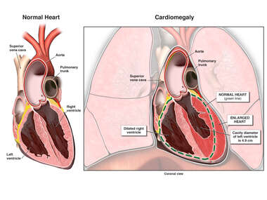 Normal Heart Compared to Cardiomegaly