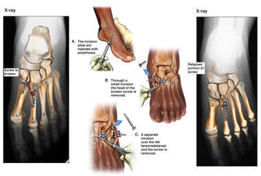 Retained Hardware with Surgical Removal