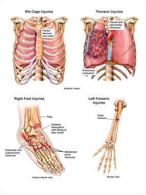 Post-accident Injuries to Lungs and Extremities