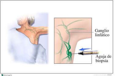 Needle Lymph Biopsy