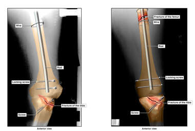 Surgical Fixation of Left Femur and Tibial Plateau