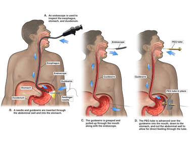 Esophagogastroduodenoscopy and Percutaneous Endoscopic Gastrosstomy (PEG) Tube Placement