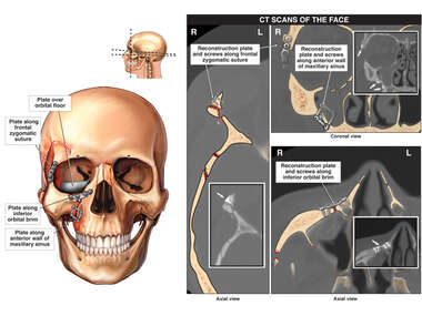 Facial Fractures and CT Scan Color Interpretations from Post-operative-Condition