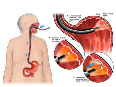 Endoscopic Snare Removal of Pedunculated Polyp