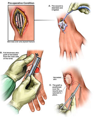 Additional Surgical Repairs of the Right Wrist