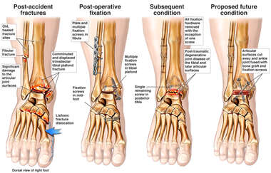 Progression of Ankle Injury