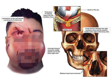 Head Trauma and Facial Features