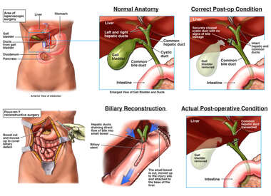 Cholecystectomy and the Anatomy of the Gall Bladder Region