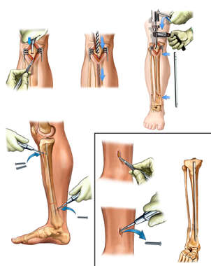 Surgical Fixation of the Right Lower Leg with Removal of Painful Hardware
