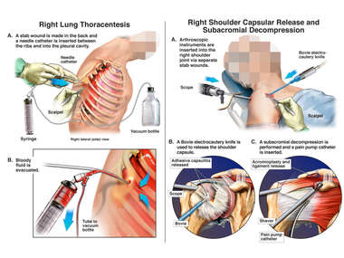 Surgeries (Right Lung Thoracentesis and Right Shoulder Decompression)