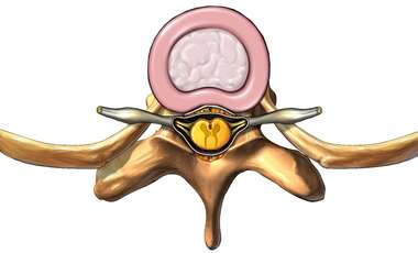Thoracic Vertebra and Disc