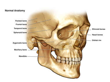 Normal Anatomy of the Facial Bones