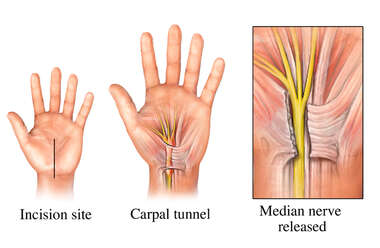 Open Release of Carpal Tunnel Syndrome